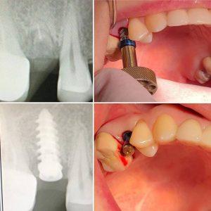 implantes-2-300x300